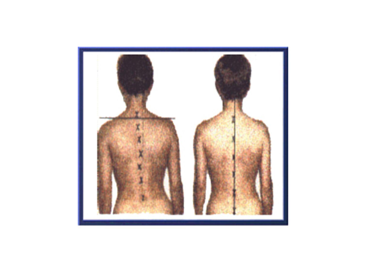 Η γρήγορη διαπίστωση της σκολίωσης είναι σημαντική για την πορεία της θεραπείας.Έχοντας υπόψη ότι η ΣΣ συνεχίζει να αναπτύσσετε μέχρι την ηλικία των 20 χρονών περίπου, η σκολίωση εάν αφεθεί χωρίς αντιμετώπιση τότε θα χειροτερεύσει.Όταν το κύρτωμα έχει σχηματισθεί και οργανωθεί, η διόρθωση είναι πολύ δύσκολη και οι σοβαρές επιπλοκές συχνότερες.
