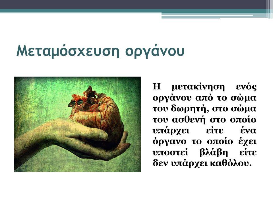 Μεταμόσχευση οργάνου Η μετακίνηση ενός οργάνου από το σώμα του δωρητή, στο σώμα του ασθενή στο οποίο υπάρχει είτε ένα όργανο το οποίο έχει υποστεί βλάβη είτε δεν υπάρχει καθόλου.