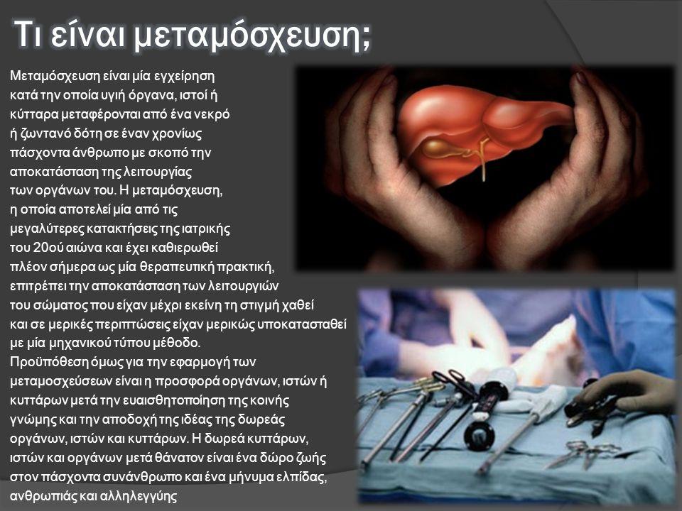 Μεταμόσχευση είναι μία εγχείρηση κατά την οποία υγιή όργανα, ιστοί ή κύτταρα μεταφέρονται από ένα νεκρό ή ζωντανό δότη σε έναν χρονίως πάσχοντα άνθρωπ