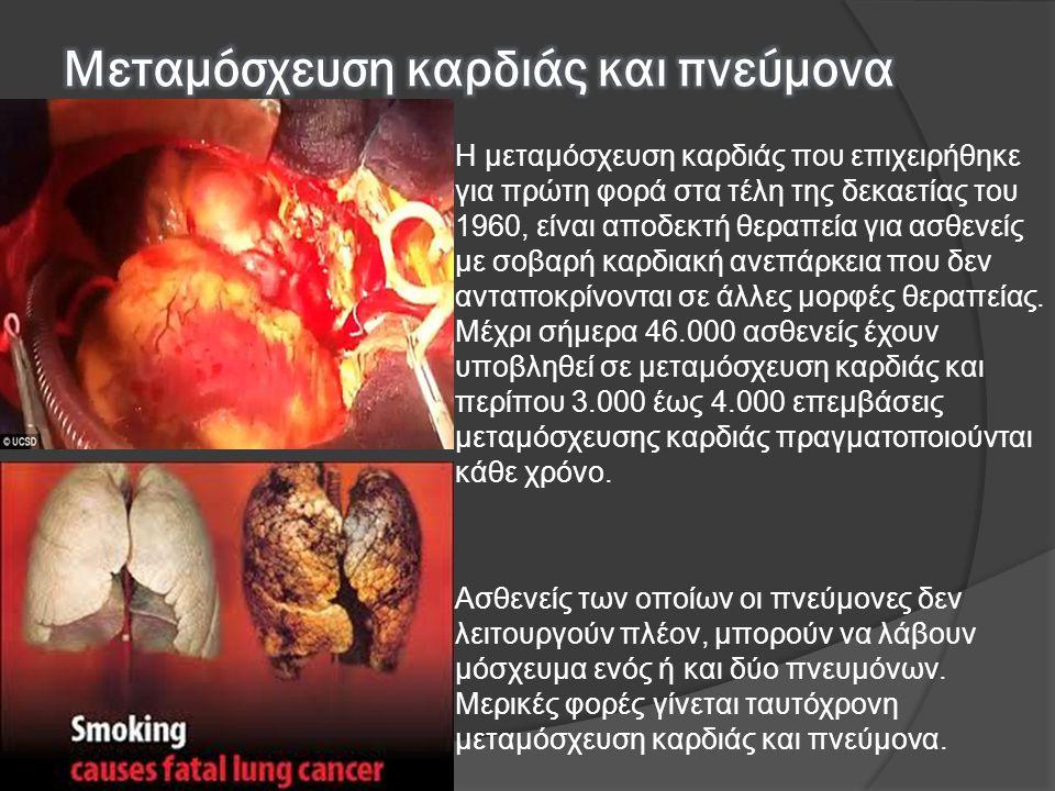  Η μεταμόσχευση καρδιάς που επιχειρήθηκε για πρώτη φορά στα τέλη της δεκαετίας του 1960, είναι αποδεκτή θεραπεία για ασθενείς με σοβαρή καρδιακή ανεπ