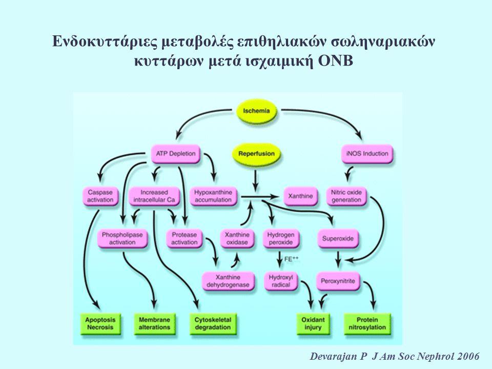 Σιγμοειδής καμπύλη σχέσης ασβεστίου και PTH σε ασθενείς χωρίς (Α) και με (Β) επιμένοντα δευτεροπαθή υπερπαραθυρεοειδισμό μετά από μεταμόσχευση νεφρού Messa P et al Kidney Int 1998