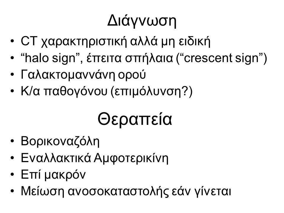 """Διάγνωση CT χαρακτηριστική αλλά μη ειδική """"halo sign"""", έπειτα σπήλαια (""""crescent sign"""") Γαλακτομαννάνη ορού Κ/α παθογόνου (επιμόλυνση?) Βορικοναζόλη Ε"""