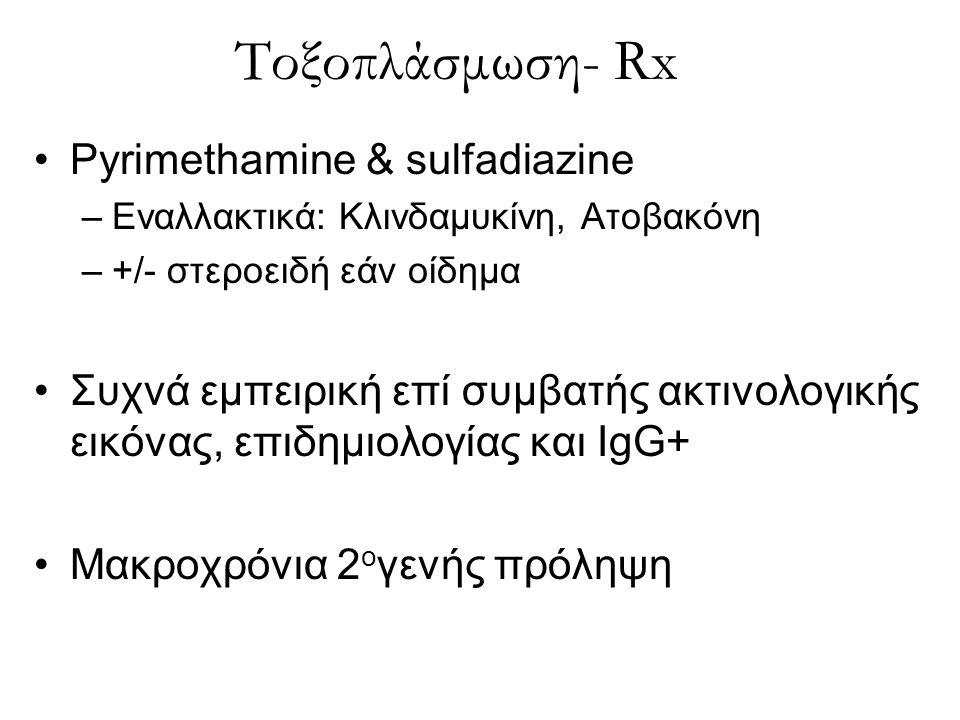 Τοξοπλάσμωση- Rx Pyrimethamine & sulfadiazine –Εναλλακτικά: Κλινδαμυκίνη, Ατοβακόνη –+/- στεροειδή εάν οίδημα Συχνά εμπειρική επί συμβατής ακτινολογικ