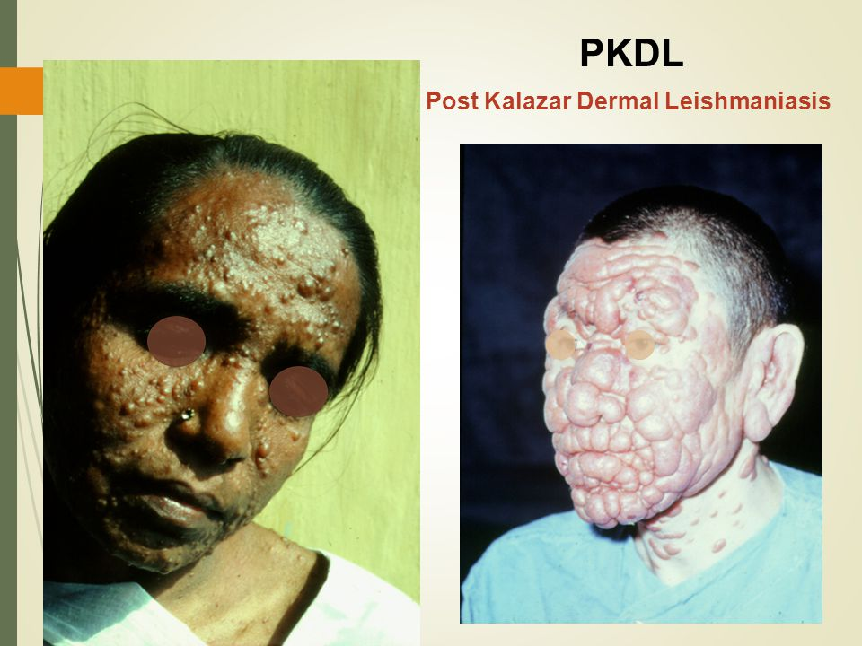 PKDL Post Kalazar Dermal Leishmaniasis