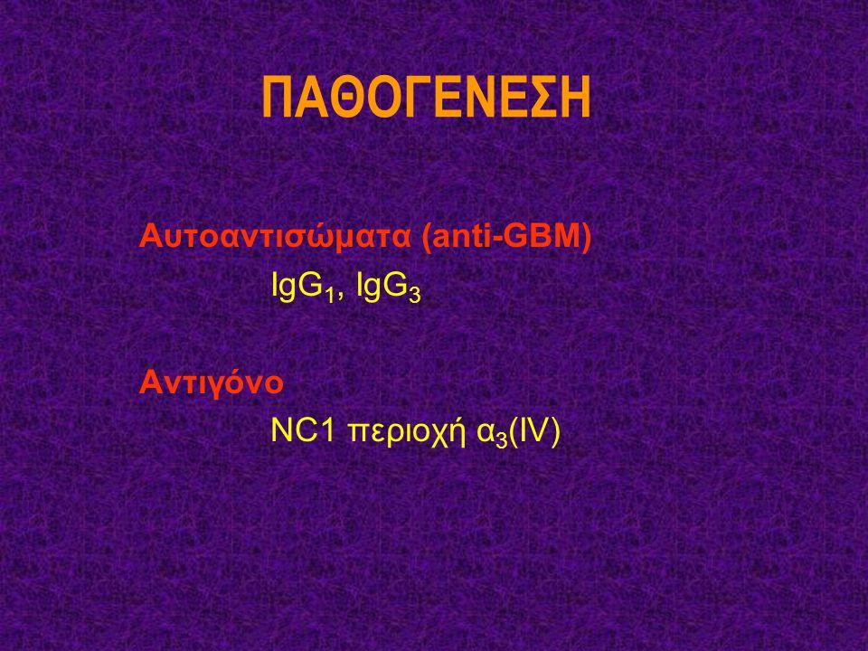 ΠΑΘΟΓΕΝΕΣΗ Αυτοαντισώματα (anti-GBM) IgG 1, IgG 3 Aντιγόνο NC1 περιοχή α 3 (ΙV)