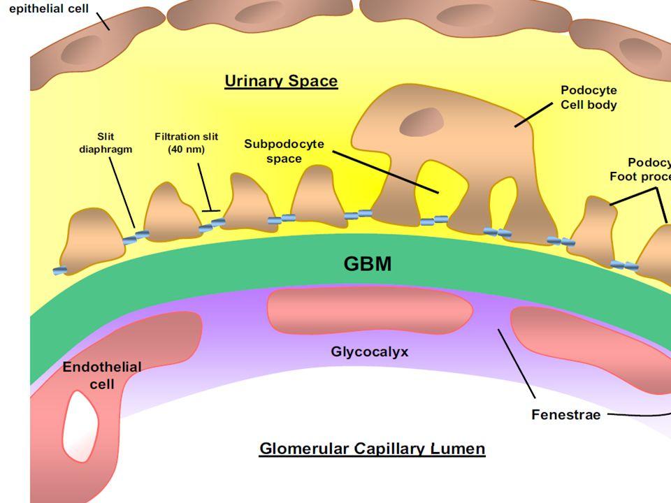 ΕΡΓΑΣΤΗΡΙΑΚΟΣ ΕΛΕΓΧΟΣ Γενική ούρων Μικρή – μέτρια λευκωματουρία Σπειραματική αιματουρία Ερυθροκυτταρική κυλινδρουρία