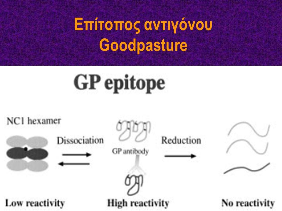 ΕΠΙΔΗΜΙΟΛΟΓΙΑ 10–20% των ΤΕΣΝ Προσβολή όλων των ηλικιών (μεγαλύτερα παιδιά έως ηλικιωμένοι) Δικόρυφη κατανομή συχνότητας 1ο peak: 2η–3η δεκαετία 2o peak: 6η–7η δεκαετία Νέοι: Συχνότερα ανδρικό φύλο Υψηλότερη επίπτωση πνευμονικής συμμετοχής (Goodpasture) Ηλικιωμένοι: Συχνότερα γυναίκες Συχνότερα αμιγής νεφρική προσβολή