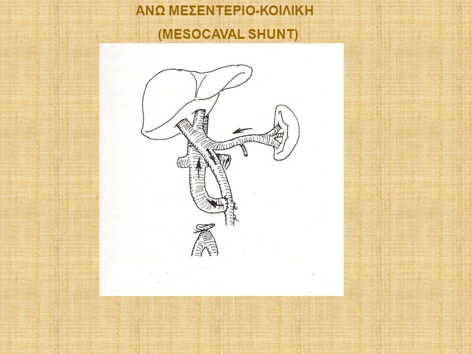 ΑΝΩ ΜΕΣΕΝΤΕΡΙΟ-ΚΟΙΛΙΚΗ (MESOCAVAL SHUNT)