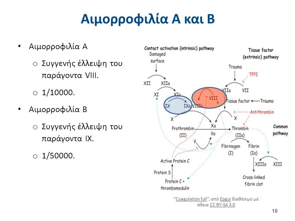 Αιμορροφιλία Α και Β Αιμορροφιλία Α o Συγγενής έλλειψη του παράγοντα VIII. o 1/10000. Αιμορροφιλία Β o Συγγενής έλλειψη του παράγοντα ΙΧ. o 1/50000. 1