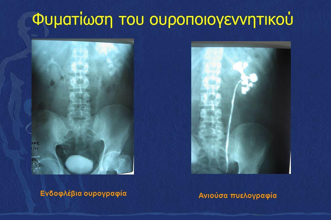 Φυματίωση του ουροποιογεννητικού Ενδοφλέβια ουρογραφία Ανιούσα πυελογραφία