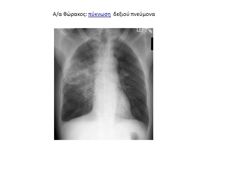 Α/α θώρακος: πύκνωση δεξιού πνεύμοναπύκνωση