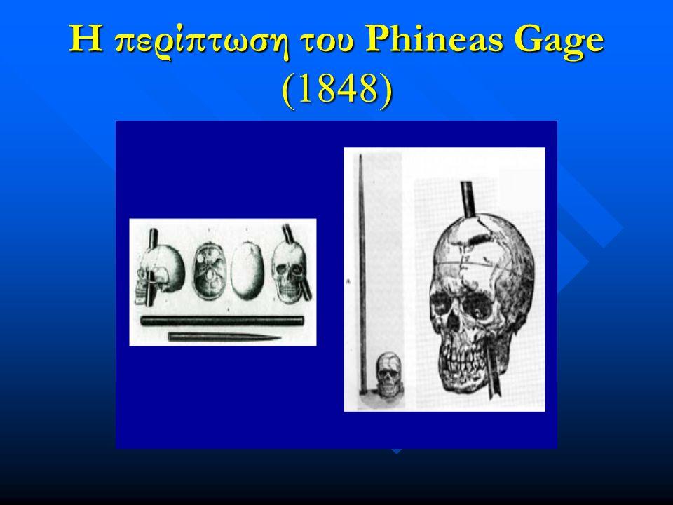 Η περίπτωση του Phineas Gage (1848)