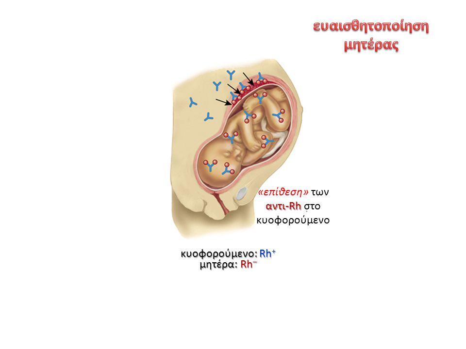 ερυθρό αιμοσφαίριο κυοφορούμενο: Rh + μητέρα: Rh – αντι-Rh αντισώματα αντι-Rh Rh + επόμενη εγκυμοσύνη παιδιού Rh + αντι-Rh «επίθεση» των αντι-Rh στο κ