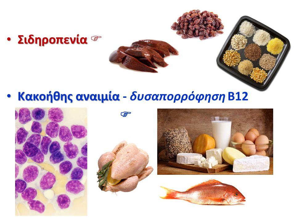 Σιδηροπενία Σιδηροπενία  Κακοήθης αναιμία Κακοήθης αναιμία - δυσαπορρόφηση B12 