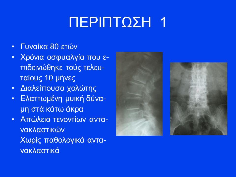 ΠΕΡΙΠΤΩΣΗ 1 Γυναίκα 80 ετών Χρόνια οσφυαλγία που ε- πιδεινώθηκε τούς τελευ- ταίους 10 μήνες Διαλείπουσα χολώτης Ελαττωμένη μυική δύνα- μη στά κάτω άκρα Απώλεια τενοντίων αντα- νακλαστικών Χωρίς παθολογικά αντα- νακλαστικά