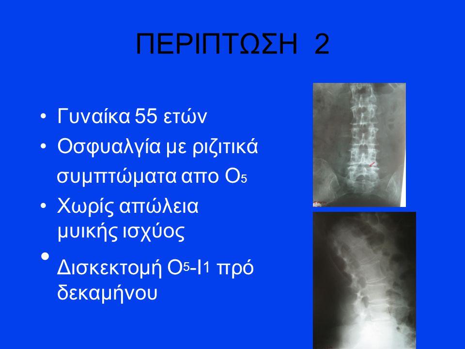 Γυναίκα 55 ετών Οσφυαλγία με ριζιτικά συμπτώματα απο Ο 5 Χωρίς απώλεια μυικής ισχύος Δισκεκτομή Ο 5 -Ι 1 πρό δεκαμήνου ΠΕΡΙΠΤΩΣΗ 2