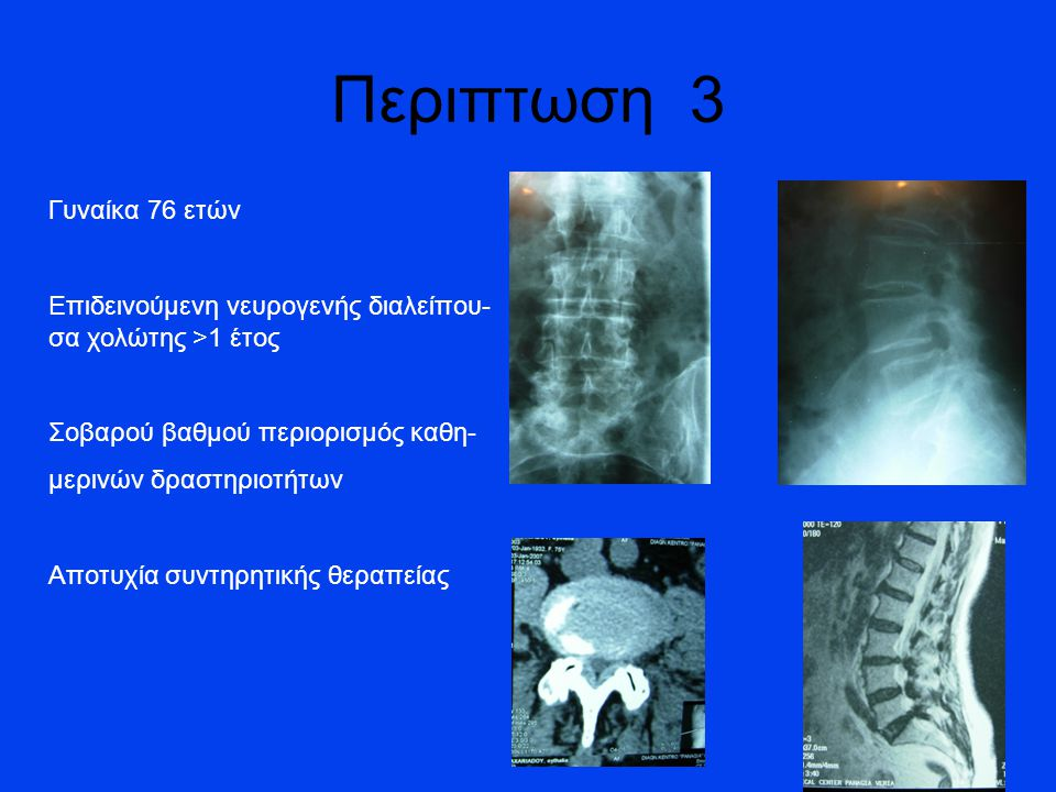 Γυναίκα 76 ετών Επιδεινούμενη νευρογενής διαλείπου- σα χολώτης >1 έτος Σοβαρού βαθμού περιορισμός καθη- μερινών δραστηριοτήτων Αποτυχία συντηρητικής θεραπείας Περιπτωση 3