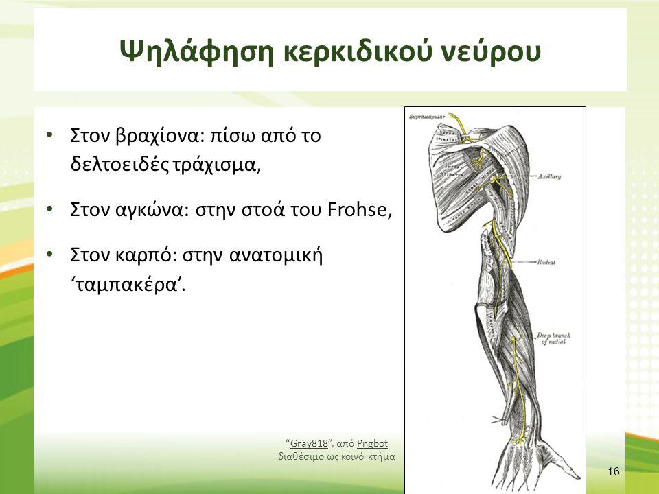 Ψηλάφηση κερκιδικού νεύρου Στον βραχίονα: πίσω από το δελτοειδές τράχισμα, Στον αγκώνα: στην στοά του Frohse, Στον καρπό: στην ανατομική 'ταμπακέρα'.
