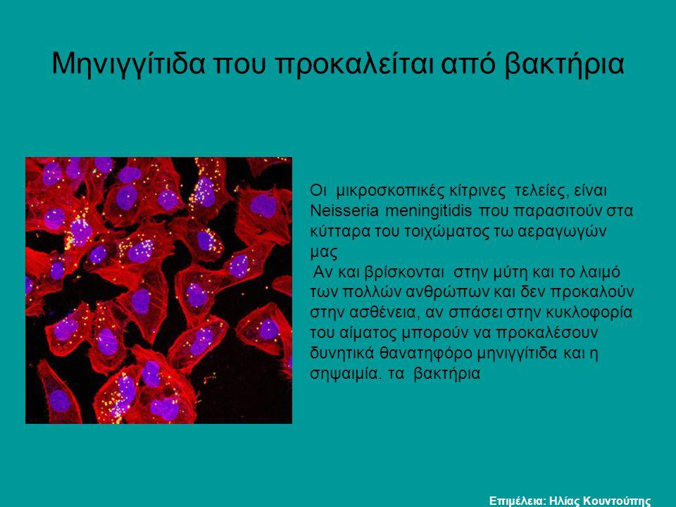 Μηνιγγίτιδα που προκαλείται από βακτήρια Οι μικροσκοπικές κίτρινες τελείες, είναι Neisseria meningitidis που παρασιτούν στα κύτταρα του τοιχώματος τω