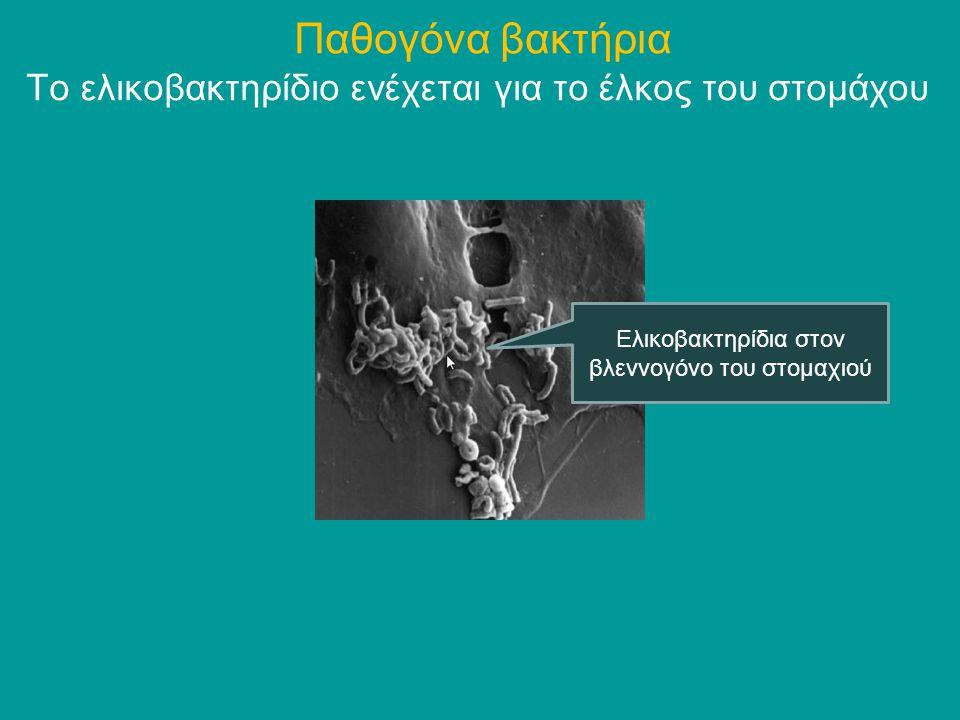 Το ελικοβακτηρίδιο ενέχεται για το έλκος του στομάχου Παθογόνα βακτήρια Ελικοβακτηρίδια στον βλεννογόνο του στομαχιού