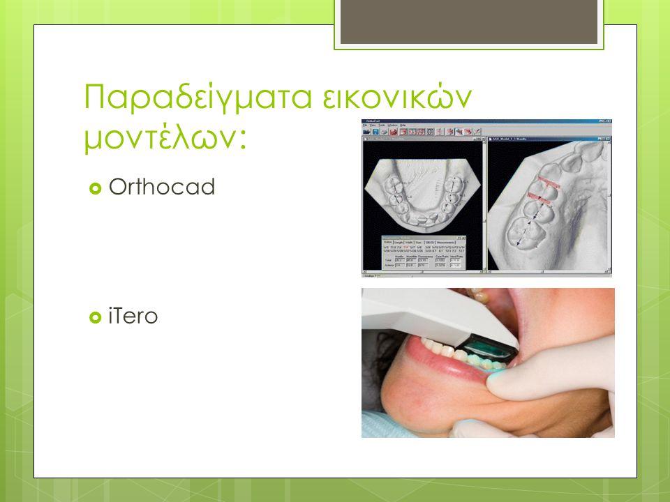 Παραδείγματα εικονικών μοντέλων:  Orthocad  iTero