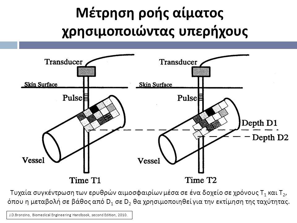 Τυχαία συγκέντρωση των ερυθρών αιμοσφαιρίων μέσα σε ένα δοχείο σε χρόνους Τ 1 και Τ 2, όπου η μεταβολή σε βάθος από D 1 σε D 2 θα χρησιμοποιηθεί για τ