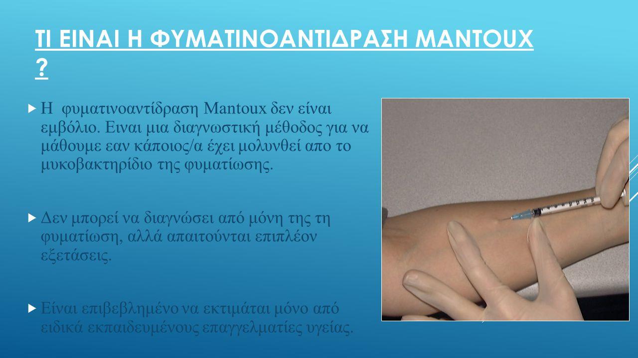 ΤΙ ΕΙΝΑΙ Η ΦΥΜΑΤΙΝΟΑΝΤΙΔΡΑΣΗ ΜANTOUX . Η φυματινοαντίδραση Μantoux δεν είναι εμβόλιο.