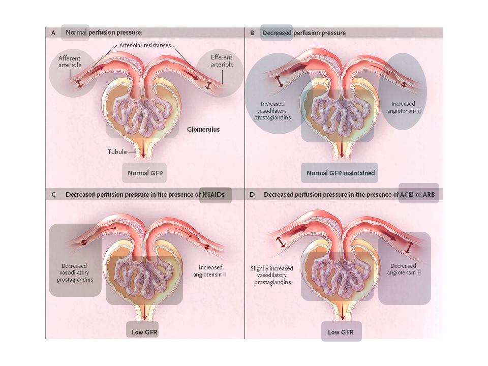 Προ-νεφρική ΟΝΑ 1.Μείωση Εξωκυττάριου Όγκου (αληθής υπο-ογκαιμία) 1.Αιμορραγία –  αρτηριακής πίεσης.