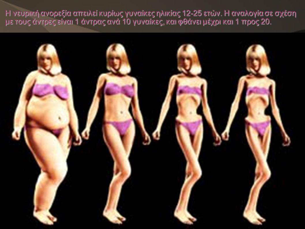 . Η νευρική ανορεξία απειλεί κυρίως γυναίκες ηλικίας 12-25 ετών. Η αναλογία σε σχέση με τους άντρες είναι 1 άντρας ανά 10 γυναίκες, και φθάνει μέχρι κ