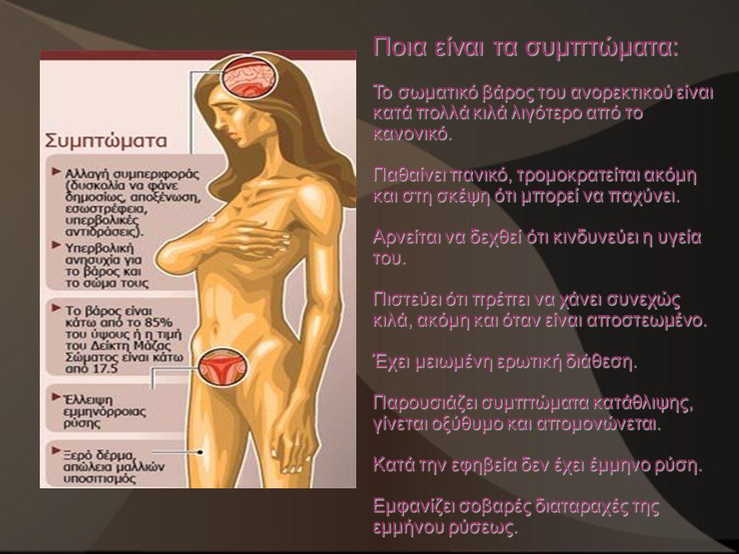 Ποια είναι τα συμπτώματα: Το σωματικό βάρος του ανορεκτικού είναι κατά πολλά κιλά λιγότερο από το κανονικό. Παθαίνει πανικό, τρομοκρατείται ακόμη και