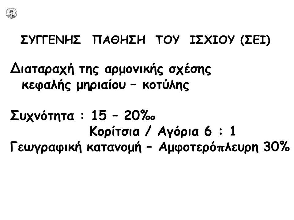 ΣΥΓΓΕΝΗΣ ΠΑΘΗΣΗ ΤΟΥ ΙΣΧΙΟΥ (ΣΕΙ) Διαταραχή της αρμονικής σχέσης κεφαλής μηριαίου – κοτύλης Συχνότητα : 15 – 20‰ Κορίτσια / Αγόρια 6 : 1 Γεωγραφική κατ