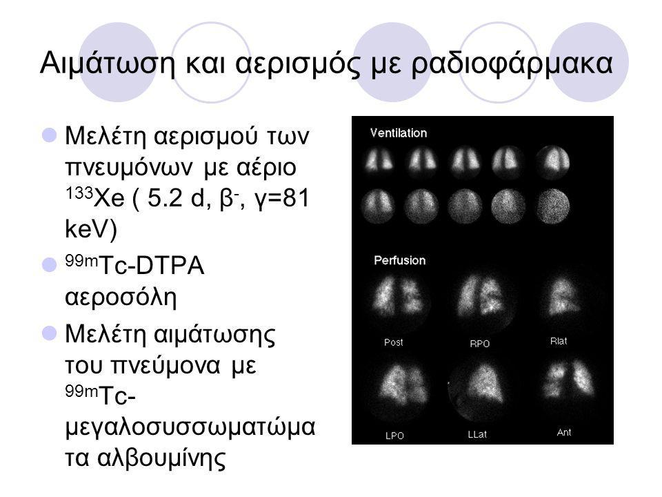 Αιμάτωση και αερισμός με ραδιοφάρμακα Μελέτη αερισμού των πνευμόνων με αέριο 133 Xe ( 5.2 d, β -, γ=81 keV) 99m Tc-DTPA αεροσόλη Μελέτη αιμάτωσης του πνεύμονα με 99m Tc- μεγαλοσυσσωματώμα τα αλβουμίνης
