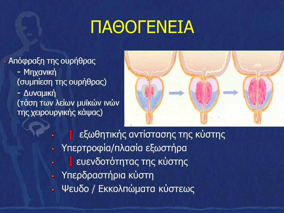 ΠΑΘΟΓΕΝΕΙΑ εξωθητικής αντίστασης της κύστης Υπερτροφία/πλασία εξωστήρα ευενδοτότητας της κύστης Υπερδραστήρια κύστη Ψευδο / Εκκολπώματα κύστεως Απόφρα