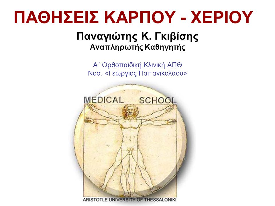 Οστεοαρθρίτιδα του Καρπού Αρθρόδεση καρπού Ολική αρθροπλαστική καρπού