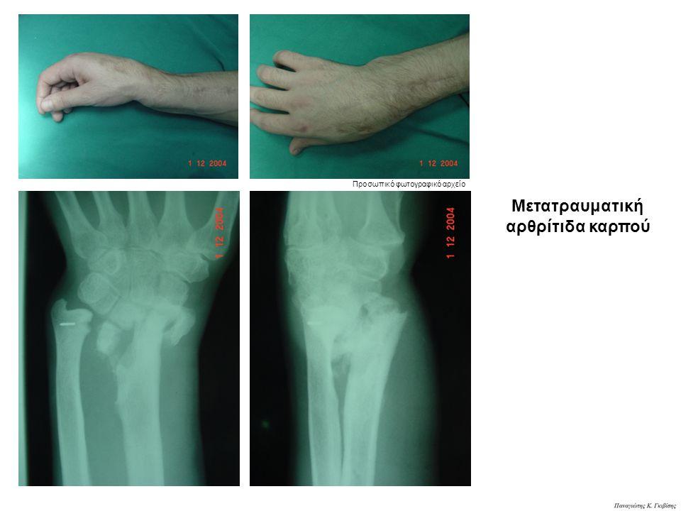 Μετατραυματική αρθρίτιδα καρπού Προσωπικό φωτογραφικό αρχείο