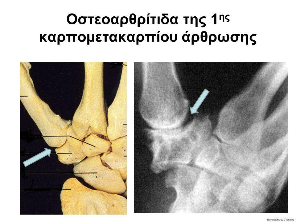 Οστεοαρθρίτιδα της 1 ης καρπομετακαρπίου άρθρωσης
