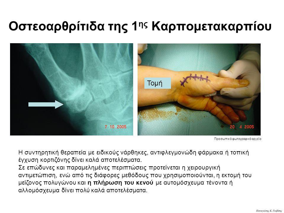 Οστεοαρθρίτιδα της 1 ης Καρπομετακαρπίου Τομή Η συντηρητική θεραπεία με ειδικούς νάρθηκες, αντιφλεγμονώδη φάρμακα ή τοπική έγχυση κορτιζόνης δίνει καλ