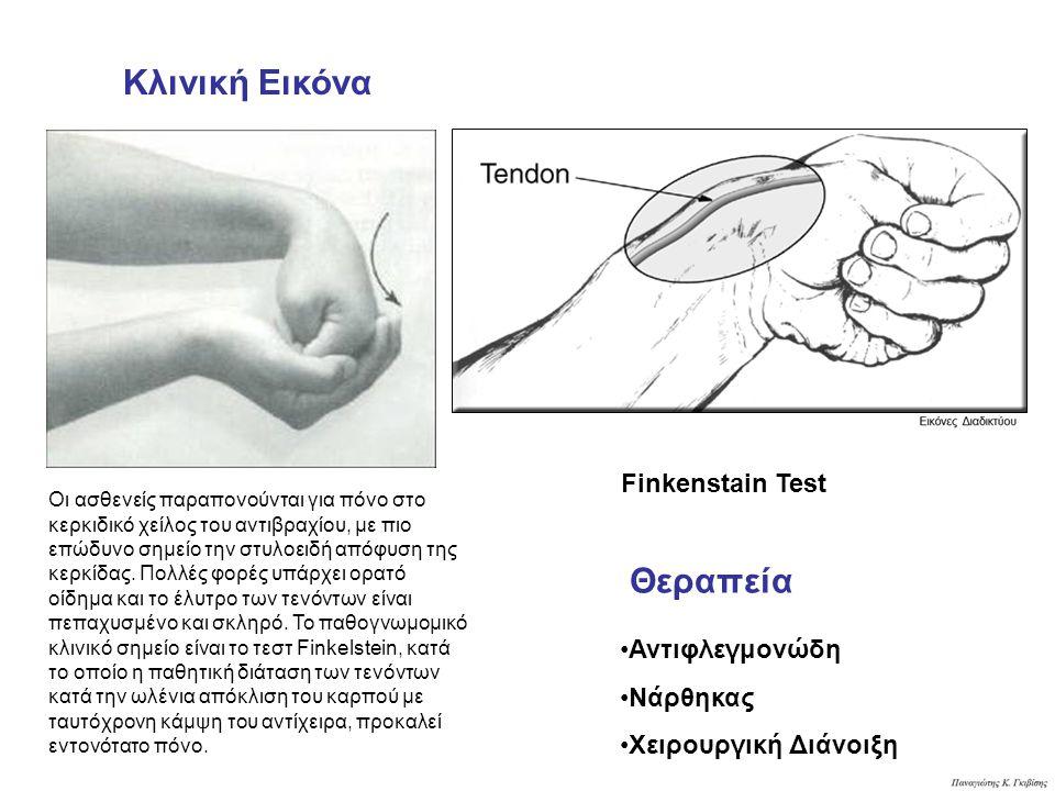 Finkenstain Test Κλινική Εικόνα Θεραπεία Αντιφλεγμονώδη Νάρθηκας Χειρουργική Διάνοιξη Οι ασθενείς παραπονούνται για πόνο στο κερκιδικό χείλος του αντιβραχίου, με πιο επώδυνο σημείο την στυλοειδή απόφυση της κερκίδας.