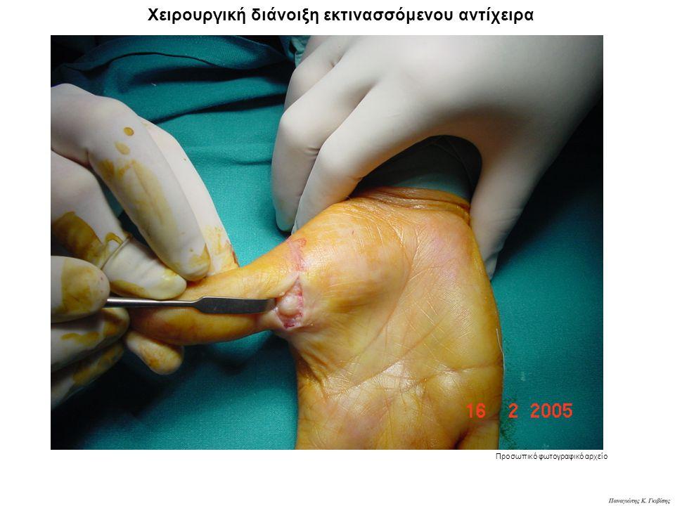 Χειρουργική διάνοιξη εκτινασσόμενου αντίχειρα Προσωπικό φωτογραφικό αρχείο