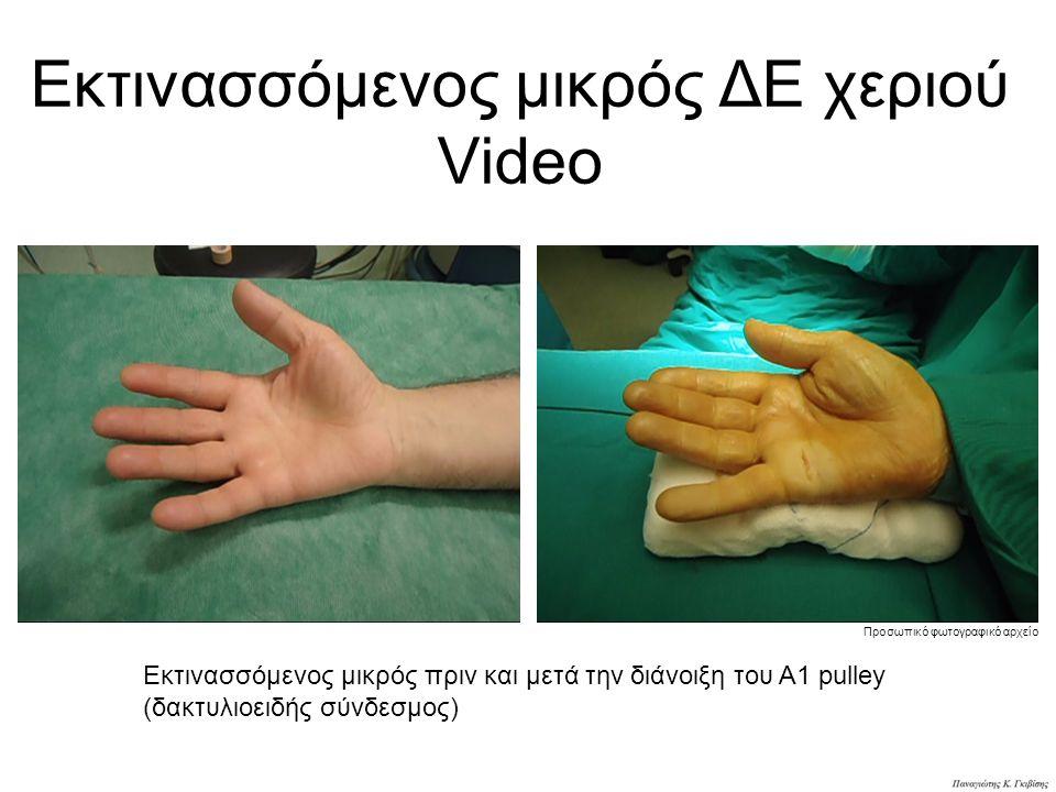 Εκτινασσόμενος μικρός ΔΕ χεριού Video Εκτινασσόμενος μικρός πριν και μετά την διάνοιξη του Α1 pulley (δακτυλιοειδής σύνδεσμος) Προσωπικό φωτογραφικό αρχείο