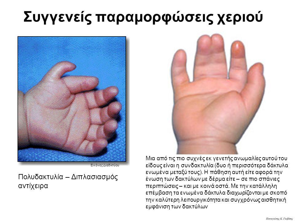 Συγγενείς παραμορφώσεις χεριού Πολυδακτυλία – Διπλασιασμός αντίχειρα Μια από τις πιο συχνές εκ γενετής ανωμαλίες αυτού του είδους είναι η συνδακτυλία (δυο ή περισσότερα δάκτυλα ενωμένα μεταξύ τους).