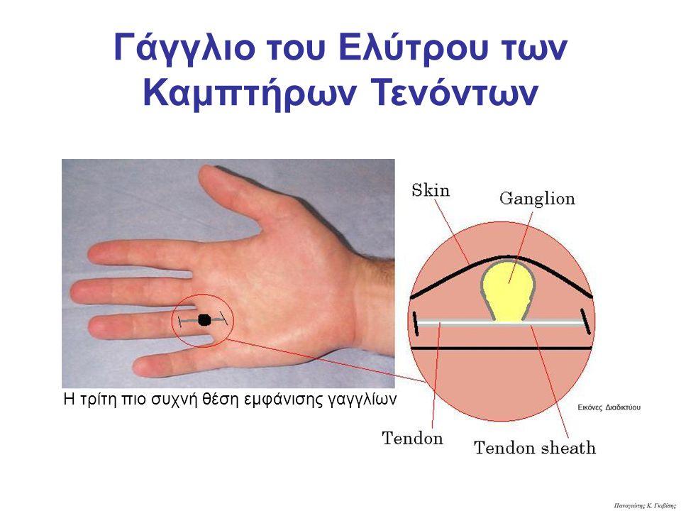 Γάγγλιο του Ελύτρου των Καμπτήρων Τενόντων Η τρίτη πιο συχνή θέση εμφάνισης γαγγλίων