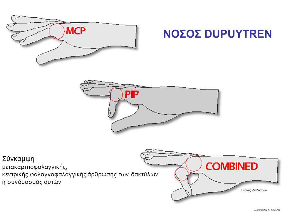 Σύγκαμψη μετακαρπιοφαλαγγικής, κεντρικής φαλαγγοφαλαγγικής άρθρωσης των δακτύλων ή συνδυασμός αυτών
