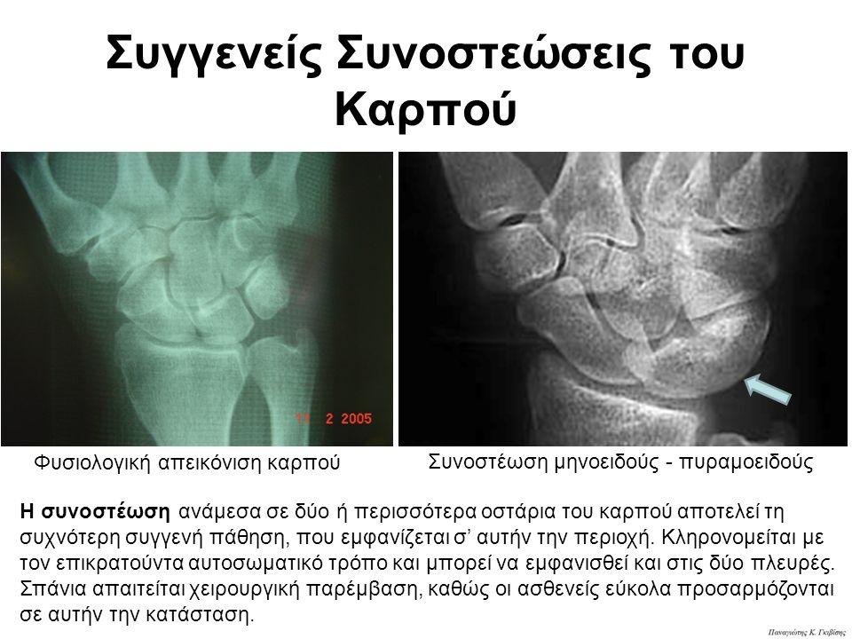 ΟΣΤΕΟΧΟΝΔΡΙΤΙΔΑ ΤΟΥ ΜΗΝΟΕΙΔΟΥΣ ΝΟΣΟΣ KIENBOCK O Robert Kienbock το 1910 περιέγραψε μία πάθηση, που την απεκάλεσε «τραυματική μαλάκυνση» του μηνοειδούς οστού και είναι η εκδήλωση ισχαιμίας του μηνοειδούς, η οποία ακολουθεί χρόνιους μικροτραυματισμούς.