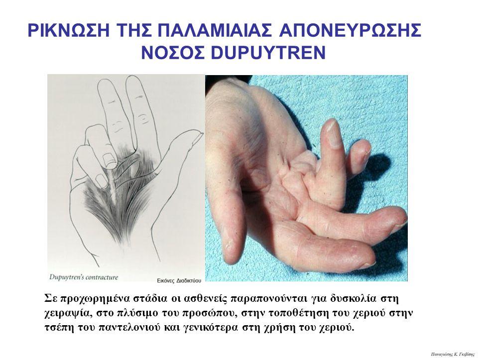 Σε προχωρημένα στάδια οι ασθενείς παραπονούνται για δυσκολία στη χειραψία, στο πλύσιμο του προσώπου, στην τοποθέτηση του χεριού στην τσέπη του παντελονιού και γενικότερα στη χρήση του χεριού.