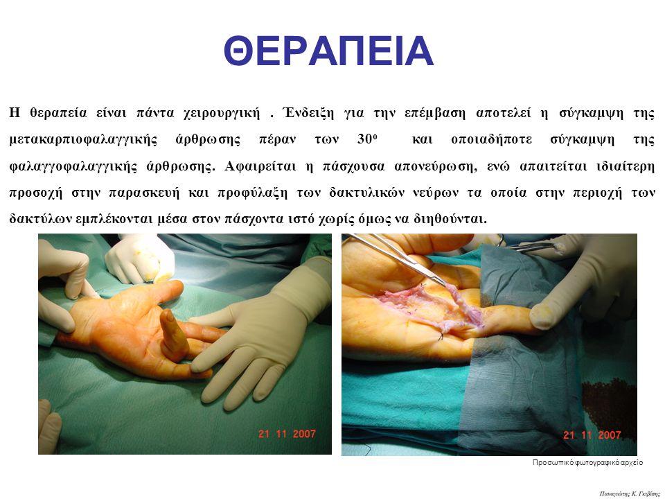 ΘΕΡΑΠΕΙΑ Η θεραπεία είναι πάντα χειρουργική. Ένδειξη για την επέμβαση αποτελεί η σύγκαμψη της μετακαρπιοφαλαγγικής άρθρωσης πέραν των 30 ο και οποιαδή