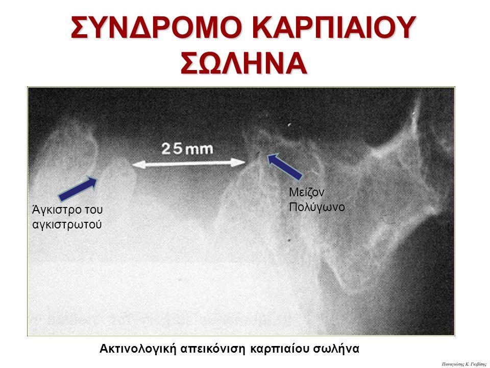 ΣΥΝΔΡΟΜΟ ΚΑΡΠΙΑΙΟΥ ΣΩΛΗΝΑ Ακτινολογική απεικόνιση καρπιαίου σωλήνα Άγκιστρο του αγκιστρωτού Μείζον Πολύγωνο