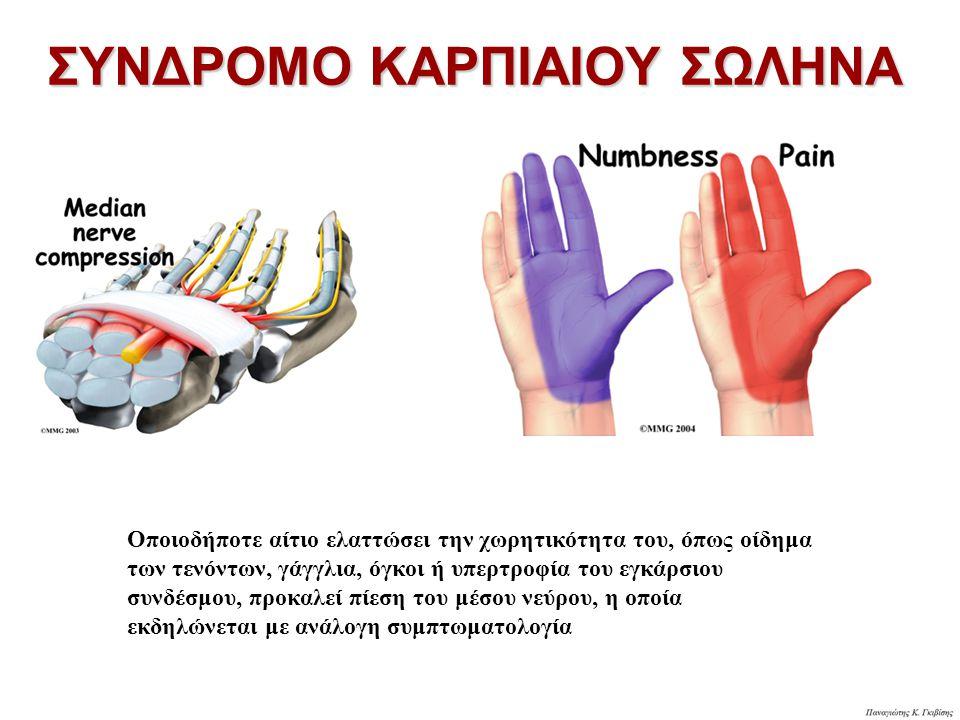 Οποιοδήποτε αίτιο ελαττώσει την χωρητικότητα του, όπως οίδημα των τενόντων, γάγγλια, όγκοι ή υπερτροφία του εγκάρσιου συνδέσμου, προκαλεί πίεση του μέσου νεύρου, η οποία εκδηλώνεται με ανάλογη συμπτωματολογία ΣΥΝΔΡΟΜΟ ΚΑΡΠΙΑΙΟΥ ΣΩΛΗΝΑ