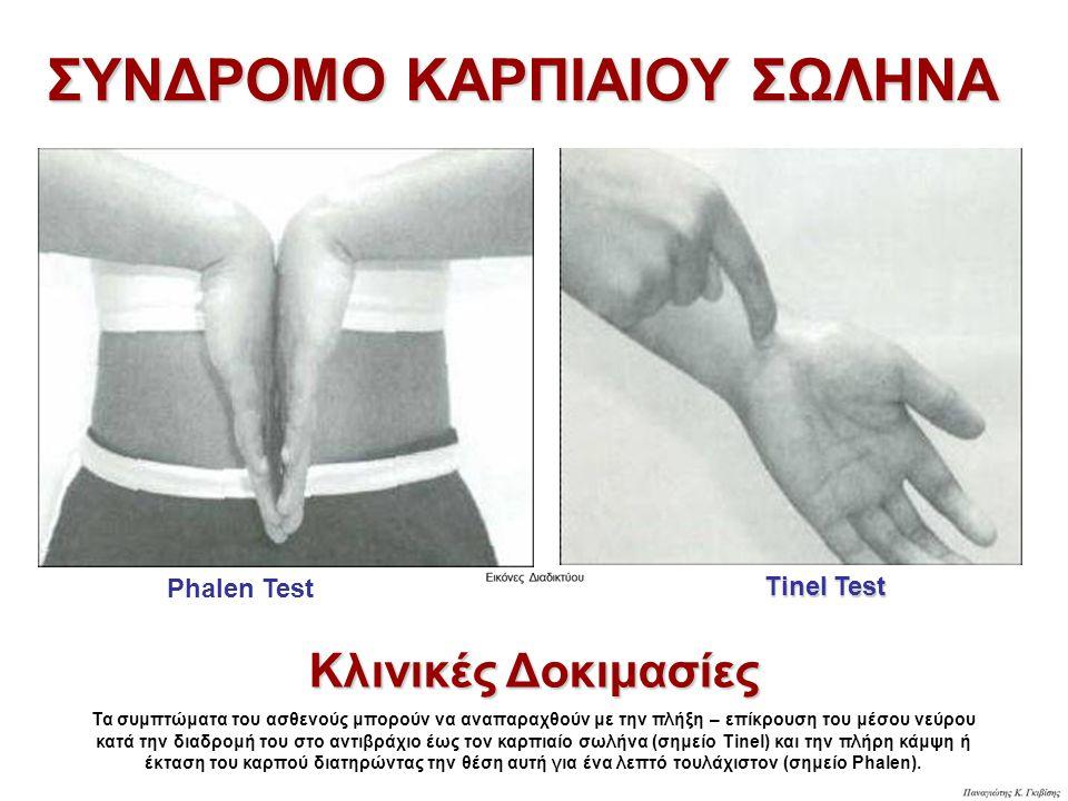 Phalen Test Tinel Test Κλινικές Δοκιμασίες Τα συμπτώματα του ασθενούς μπορούν να αναπαραχθούν με την πλήξη – επίκρουση του μέσου νεύρου κατά την διαδρ