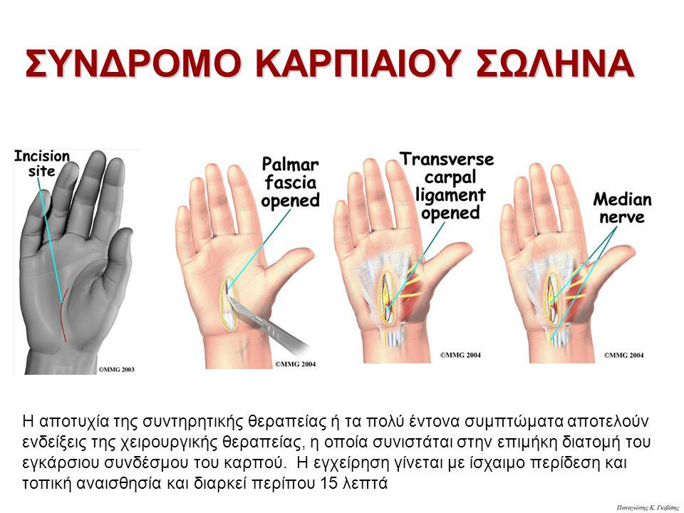 Η αποτυχία της συντηρητικής θεραπείας ή τα πολύ έντονα συμπτώματα αποτελούν ενδείξεις της χειρουργικής θεραπείας, η οποία συνιστάται στην επιμήκη διατομή του εγκάρσιου συνδέσμου του καρπού.